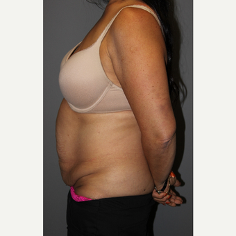 45-54 year old woman treated with Tummy Tuck before 3129281