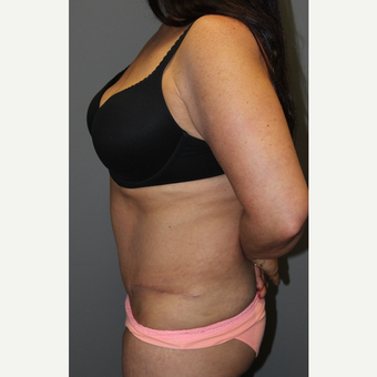 45-54 year old woman treated with Tummy Tuck after 3129281