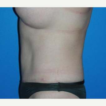 Tummy Tuck after 3208628