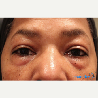 55-64 year old woman treated with Eye Bags Treatment before 3108095