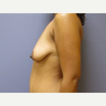 35 year old woman treated with Breast Lift with 275 cc silicone Breast Implants before 2550366