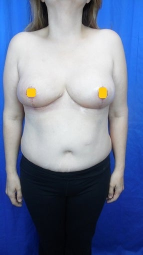 45-54 year old woman treated with Breast Reduction after 2817782