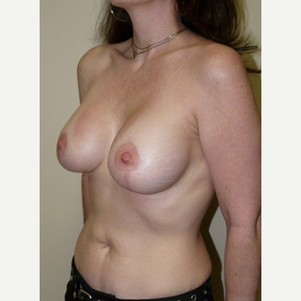 Woman treated with Breast Lift with Implants after 1773465