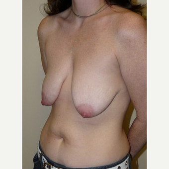 Woman treated with Breast Lift with Implants before 1773465
