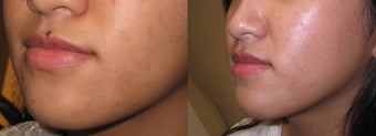 Mole Removal photos before 951889