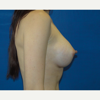 Breast Augmentation with 300 cc Silicone Implants after 3537400
