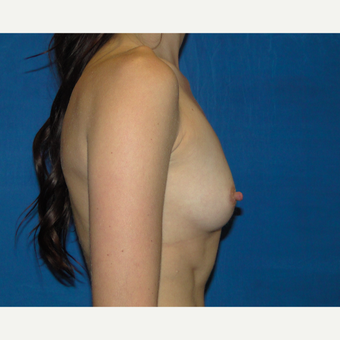 Breast Augmentation with 300 cc Silicone Implants before 3537400