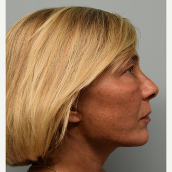 45-54 year old woman treated with Lower Face Lift after 3428265