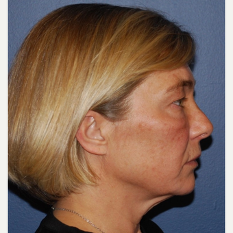 45-54 year old woman treated with Lower Face Lift before 3428265