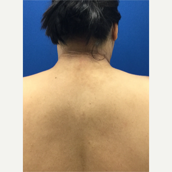 'Buffalo Hump' Liposuction after 3259366