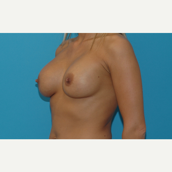 40 year old woman treated with Breast Augmentation after 3200909