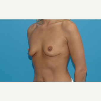 40 year old woman treated with Breast Augmentation before 3200909