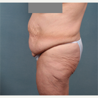 55-64 year old woman treated with Tummy Tuck before 3259045