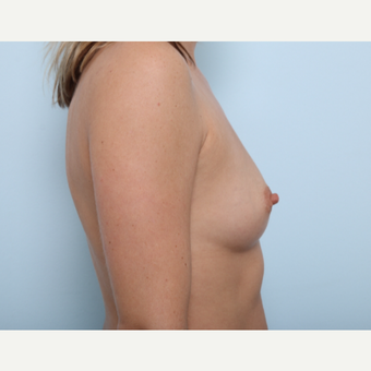 Breast Augmentation before 3459729