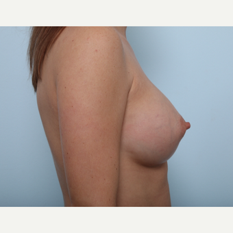 Breast Augmentation after 3459729