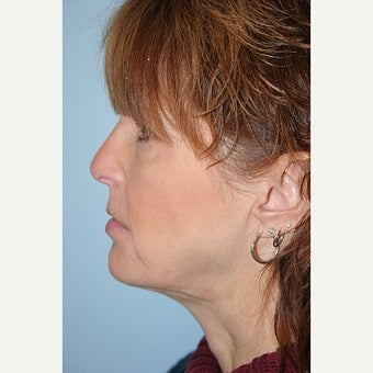 Neck Lift after 1725164
