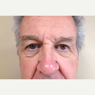65-74 year old man treated with Eyelid Surgery before 3741324