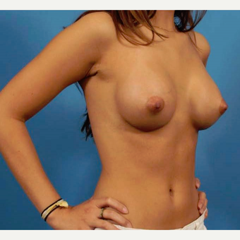 18-24 year old woman treated with Breast Implants after 3786994