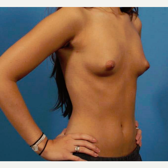 18-24 year old woman treated with Breast Implants before 3786994