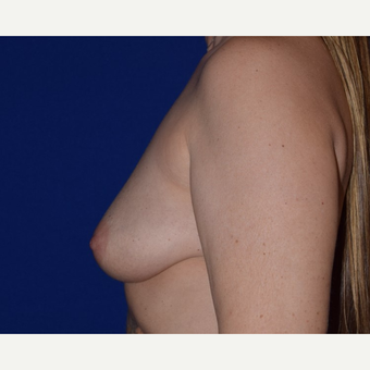 45-54 year old woman treated with Breast Augmentation with Ideal Saline Breast Implant before 3105071