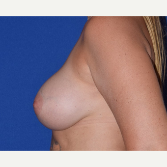 45-54 year old woman treated with Breast Augmentation with Ideal Saline Breast Implant after 3105071