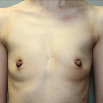 35-44 year old woman treated with Breast Augmentation before 3069760
