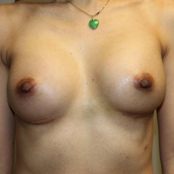 35-44 year old woman treated with Breast Augmentation after 3069760
