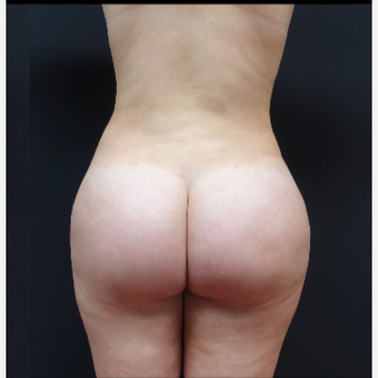 18-24 year old woman treated with Fat Transfer after 3315530