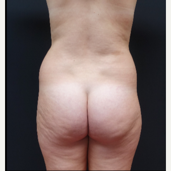 18-24 year old woman treated with Fat Transfer before 3315530