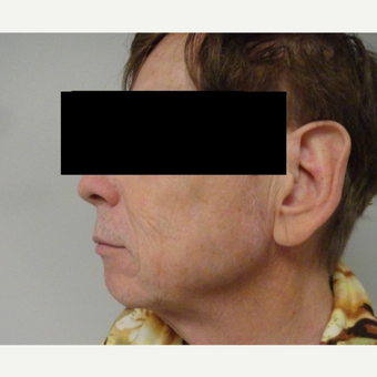 55-64 year old man treated with Facelift before 3225033
