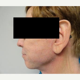 55-64 year old man treated with Facelift after 3225033