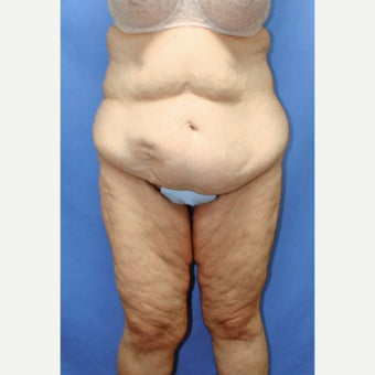 55-64 year old woman treated with Body Lift before 2263832