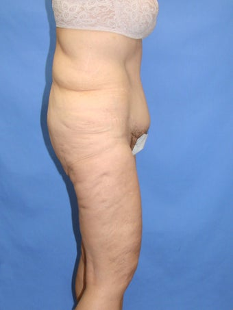 55-64 year old woman treated with Body Lift 2263832