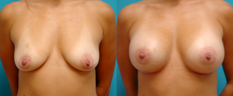 Sientra Breast Implants before 1295066