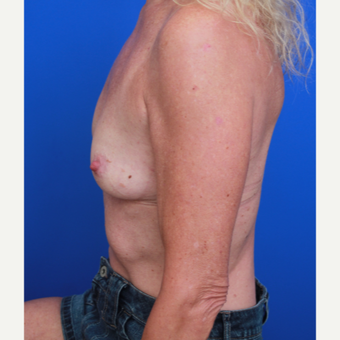 51- year old woman treated with Breast Implants before 3787640