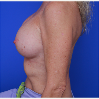 51- year old woman treated with Breast Implants after 3787640