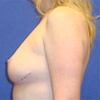 Breast Reduction 871444