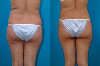 31-year-old woman treated with Liposuction. after 574518