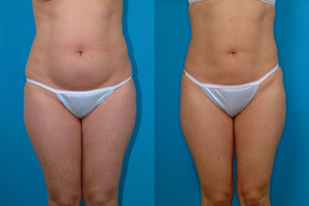 31-year-old woman treated with Liposuction. before 574518