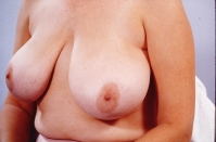 Breast Reduction before 3446230