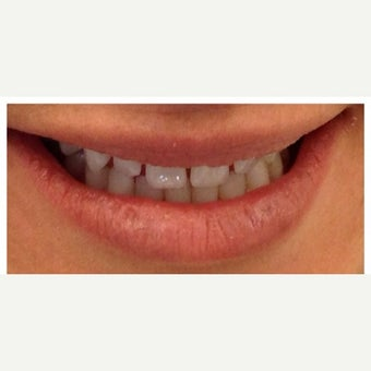 25-34 year old woman treated with Porcelain Veneers before 2449360