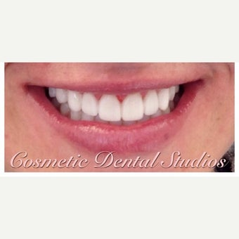 25-34 year old woman treated with Porcelain Veneers after 2449360