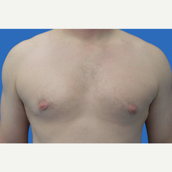 35 year old patient, unhappy with his chest after 3147084