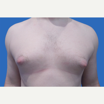 35 year old patient, unhappy with his chest before 3147084