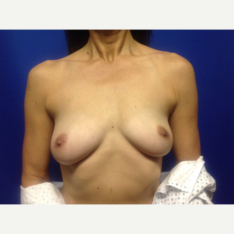 35-44 year old woman treated with Breast Augmentation before 3018995