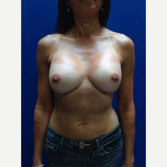35-44 year old woman treated with Breast Augmentation after 3018995