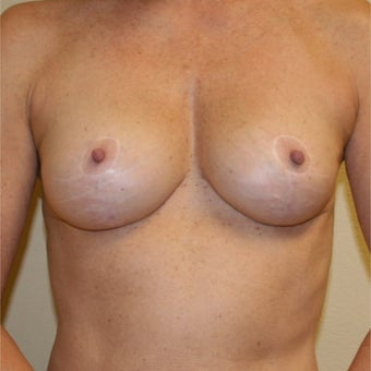 55-64 year old woman treated with Body Lift after 2609428