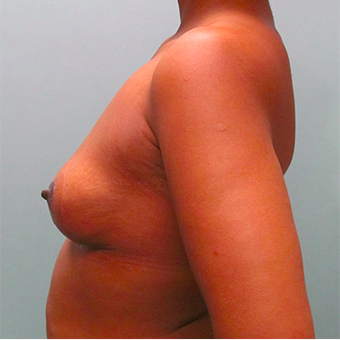33 year old woman treated with Breast Lift after 3467384