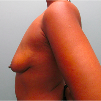 33 year old woman treated with Breast Lift before 3467384