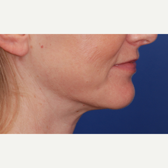 45-54 year old woman treated with Neck Lift after 3625253